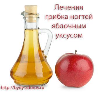 Лечения грибка ногтей яблочным уксусом