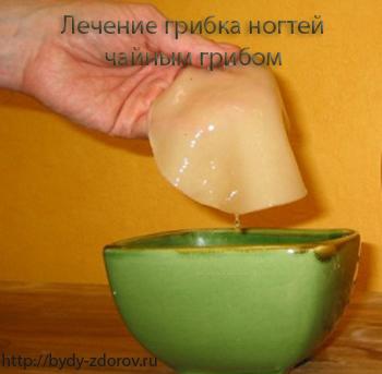 Лечение грибка ногтей чайным грибом